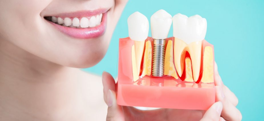 Dental implants.jpg