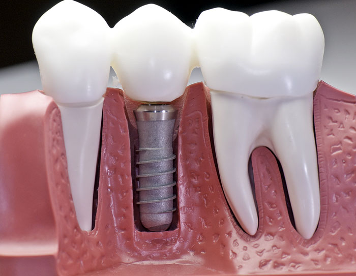 dental implant (1).jpg